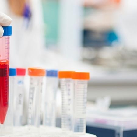 Pregled hematologa